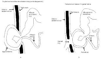 Reduction en-masse of inguinal hernia with strangulated obstruction